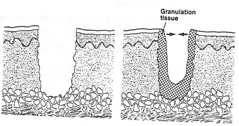 scar-tissue
